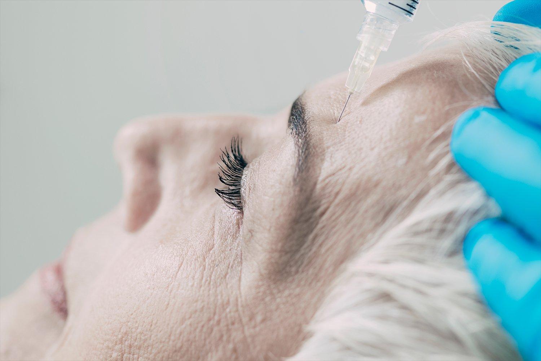 Toxina botulinica pentru riduri dinamice