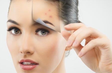 Semnele si cicatricile post acnee - putem scapa de ele?