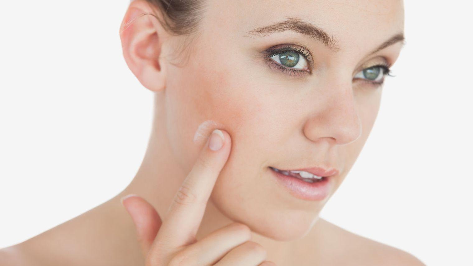 Probleme frecvente ale pielii pe timp de iarna