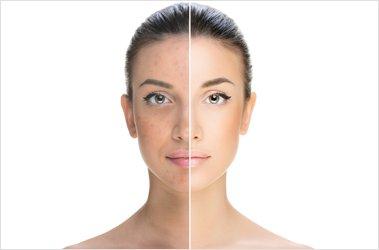 Ce boli pot prevesti acneea si dermatita atopica